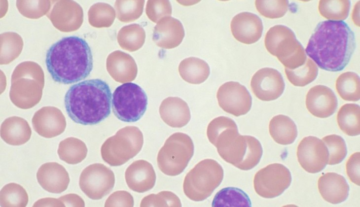 Peripheral blood smear showing CLL cells source: http://en.wikipedia.org/wiki/File:Chronic_lymphocytic_leukemia.jpg